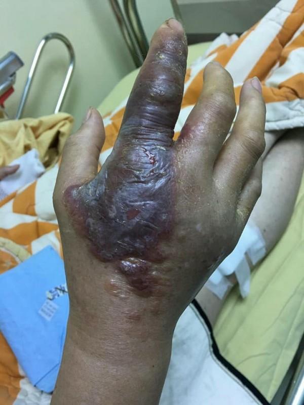 林靜儀今天在臉書PO出多張病患手腳嚴重灼傷的照片。(圖擷取自林靜儀臉書)