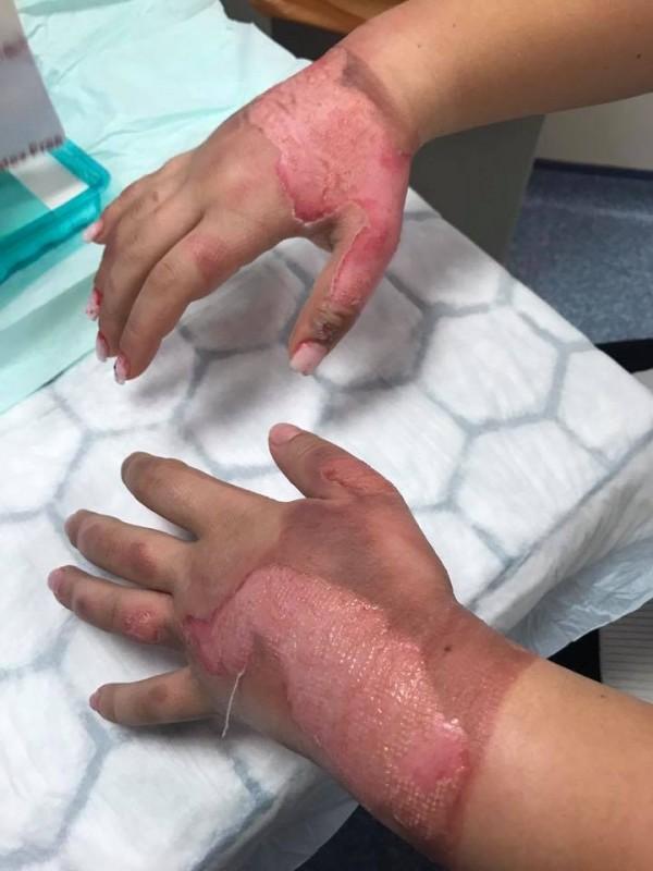 少女双手三度灼伤。(图撷取自艾德华脸书)