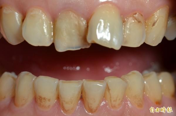 牙齒咬合面(圖中門牙下方)出現變薄、透明,即是牙齒酸蝕的現象(吳朋儒醫師提供)