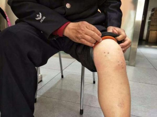 中國湖北男子左腿3年多來不斷疼痛,直至去大醫院檢查後才發現住進了2隻水蛭。(圖翻攝自新浪網)