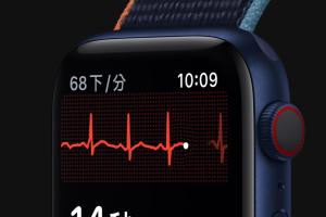 Apple Watch 心電圖「抓心律不整」有用!台醫師分享實際病例