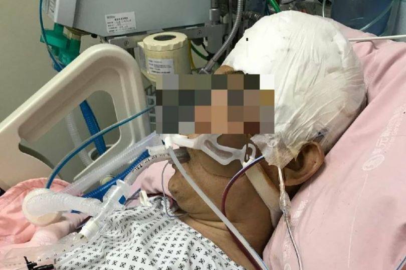 弟跌跤亡竟「復活」姊控119延誤送醫