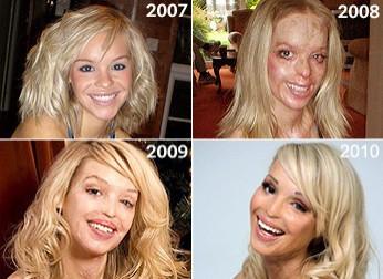 曾遭潑酸毀容 女模用笑容面對鏡頭