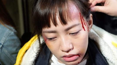 正妹女兒家暴傷照驚悚 焦恩俊:打慘一點