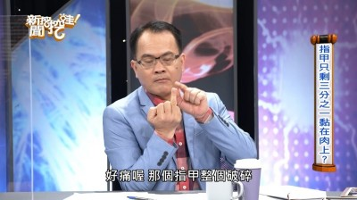 鄭弘儀出車禍「指甲掀飛」 嚇喊:無法形容多痛