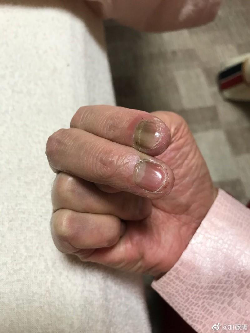「金手指」過勞潰爛!60歲加藤鷹近況曝光 鄉民驚呆了