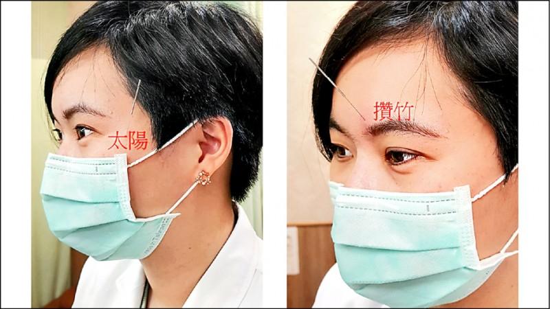 良性自發性眼瞼痙攣 中醫針藥緩解