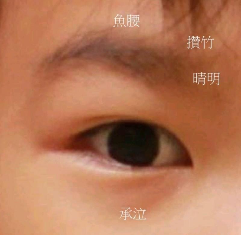 對於重度3C族如何護眼?台南市立安南醫院中醫師曾印正教大家可輕按壓眼周穴位。(記者王俊忠翻攝)