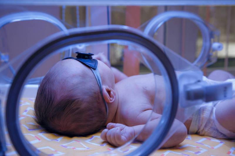 健康網》寶寶得黃疸怎麼辦?家長不要慌!食藥署:戴眼罩照光治療 - 即時新