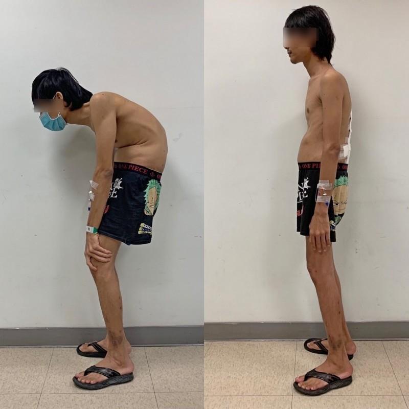 移工嚴重駝背 脊椎截骨手術助挺直腰桿重回165公分