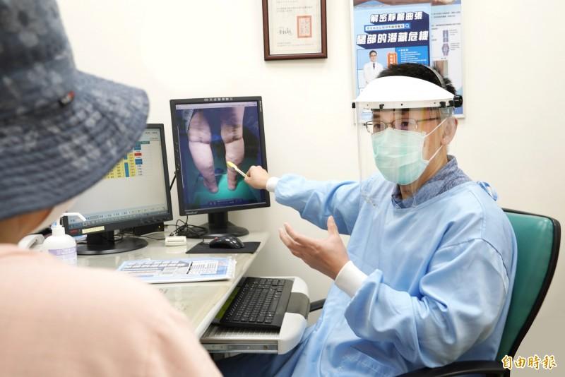 靜脈曲張患者能否打AZ疫苗? 醫:兩種血栓不同
