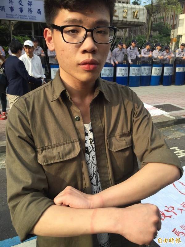「民主鬥陣」的蔡同學在驅離過程中,雙手遭束帶捆綁,留下紅腫。(記者曾健銘攝)