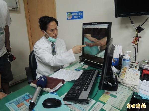 吳文宏醫師指出遭蛇咬的傷口。(記者張軒哲攝)