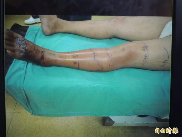 陳福忠剛到院時,左腳潰瘍尚未蔓延。(記者張軒哲翻攝)