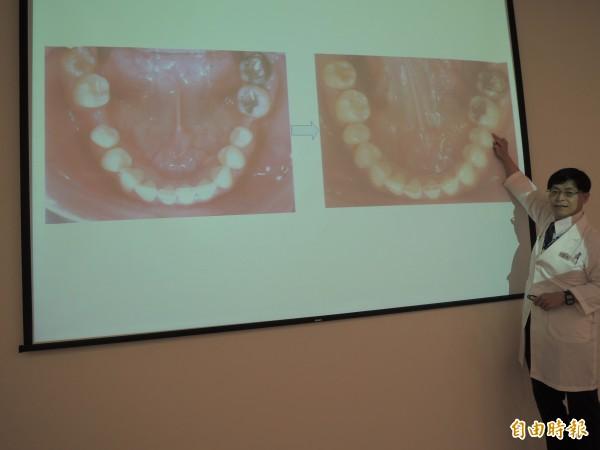 牙醫師余建宏指利用齒列矯正,智齒變代替臼齒補缺牙。(記者蔡淑媛攝)