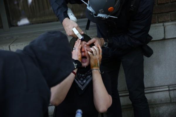 一名滋事份子的臉部遭到胡椒噴霧攻擊,表情痛苦不堪。(美聯社)