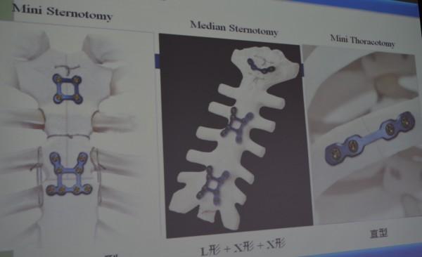 國軍台中總醫院胸腔外科主治醫師謝志明今天介紹創新的「純鈦肋骨骨板固定手術」。(記者陳建志翻攝)