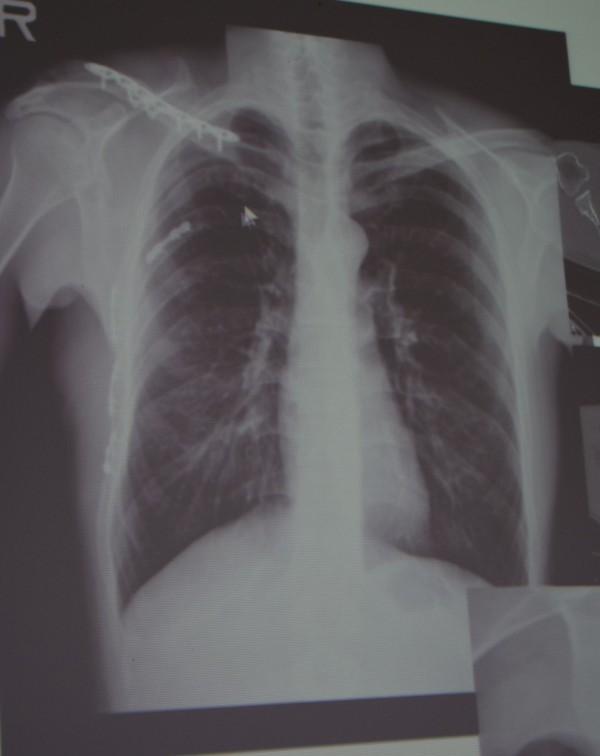 國軍台中總醫院胸腔外科主治醫師謝志明以純鈦的材料固定斷裂的肋骨,大幅減輕患者疼痛,縮短住院復原時間。(記者陳建志翻攝)