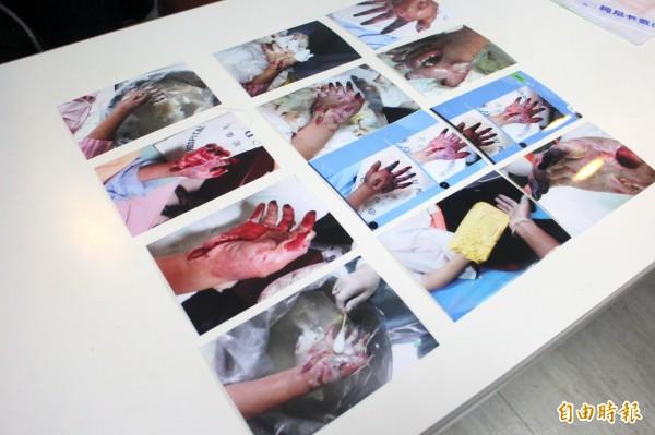 黃婦的女兒因製作手部模型灼傷,嚴重灼傷更截肢。(記者郭逸攝)