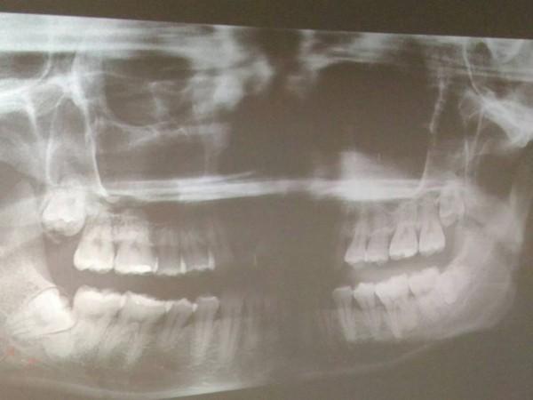 衛福部台南醫院牙醫師黃正鈞指民眾如有阻生智齒(左下一牙齒,箭頭處)、又出現症狀,建議優先拔除。(記者王俊忠翻攝)