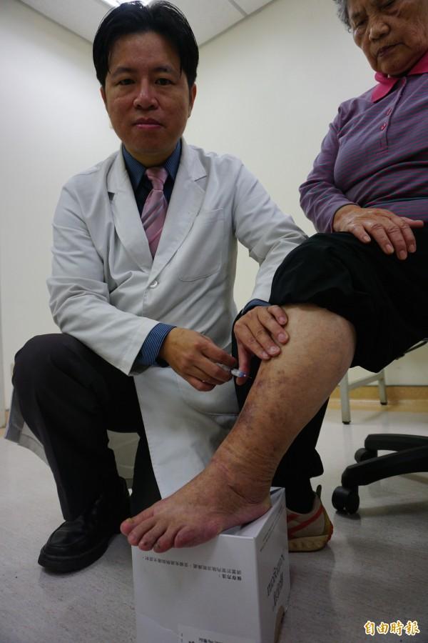醫師林子鈞為劉阿嬤注射硬化劑泡沫治療靜脈曲張。(記者蔡淑媛攝)