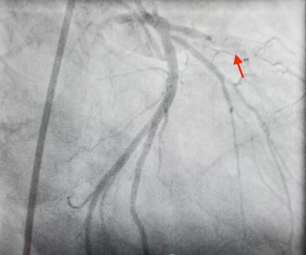 這名泰國醫生冠狀動脈左前降支裝支架處再狹窄,血流阻塞無法流通。(記者蔡淑媛翻攝)