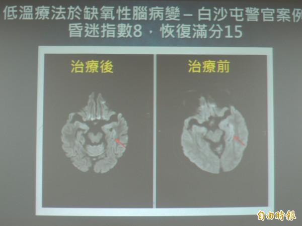 經由核磁共振可發現蔡巡官腦部治療前後差異。(記者張軒哲攝)