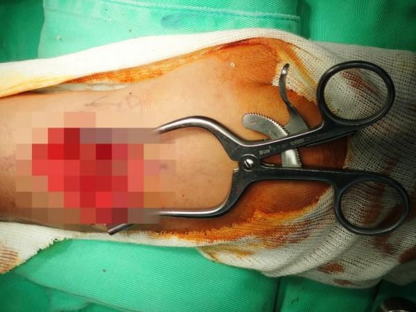 江男輕忽狗咬傷口,沒想到右手腕一直腫脹沒有消退。(長安醫院提供)