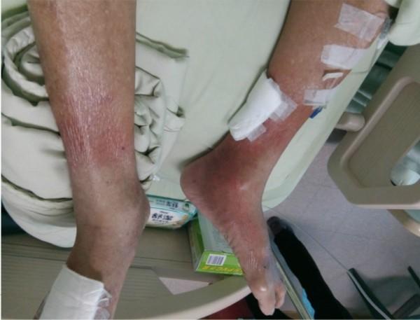 王阿公因血小板增多症,造成雙腳嚴重紅腫熱痛。(記者蔡淑媛翻攝)