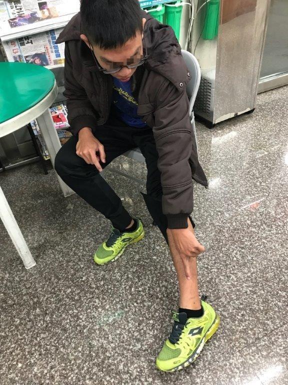 王姓大學生的左腳踝被狗咬傷。(記者洪定宏翻攝)