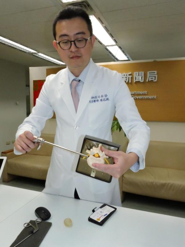 新北市立聯合醫院神經外科醫師陳冠毓示範內視鏡微創脊椎手術過程。(記者賴筱桐攝)