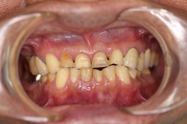 萬男因下巴前突及磨牙,造成右下第一正中門牙斷裂及咬合不全。(台中醫院提供)
