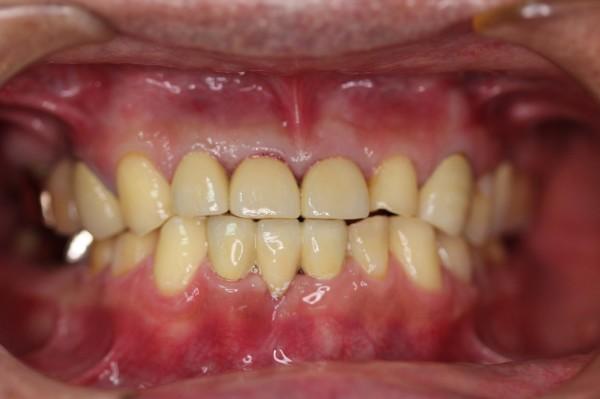 萬男經全口重建後,牙齒咬合不再有問題。(台中醫院提供)