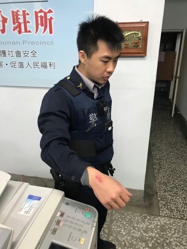 斗南分局大埤分駐所員警林于聖右手腕留下紅腫齒痕與擦傷。(記者廖淑玲翻攝)