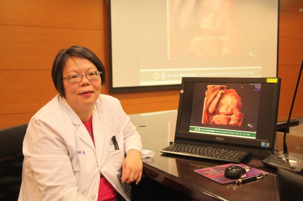 成大醫院婦產科醫師蔡佩穎指最新4D彩色超音波儀是腹中胎兒的檢查利器。(記者王俊忠翻攝)