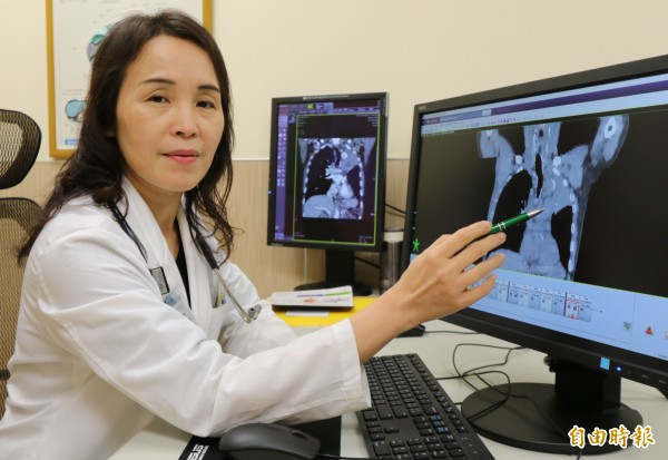 台中一名余姓老翁罹患「小細胞肺癌」,亞大醫院放射腫瘤科主治醫師鍾娜娜安排接受化療、光子刀治療。(記者陳建志攝)