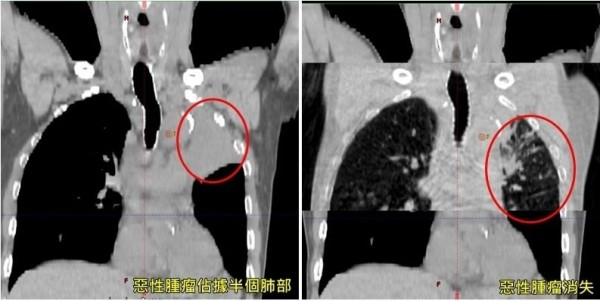 台中一名余姓老翁近半年來常喘不過氣,就醫檢查發現罹患「小細胞肺癌」(左),經治療腫瘤已大幅縮小(右)。(記者陳建志翻攝)
