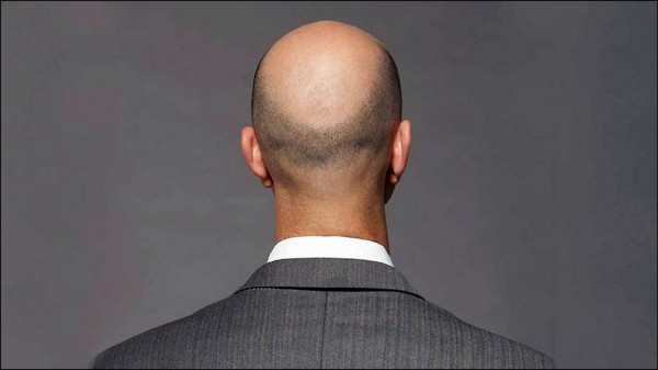 英國科學家發現骨質疏鬆症治療藥物「Way-316606」,可促使禿頭患者捐贈的毛囊長出新髮,而且沒有劇烈副作用。(取自網路)
