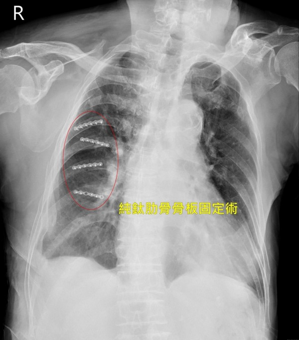 86歲賴姓老翁車禍造成右側肋骨斷裂,一度出現胸悶、呼吸困難,經進行「純鈦骨板固定術」後,讓他減輕疼痛、大口呼吸。(記者陳建志翻攝)