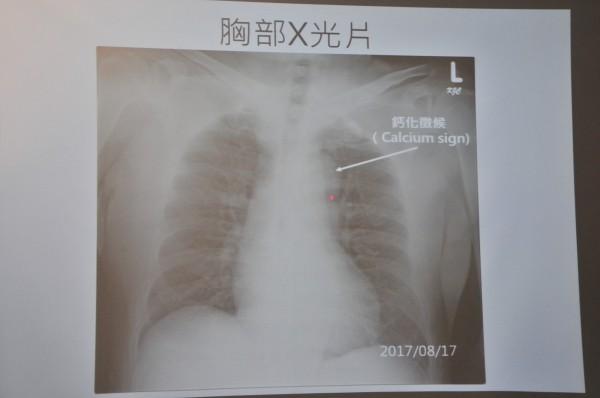 陳先生的主動脈弓、降主動脈的位置,從X光片中可觀查到鈣化現象,顯示有主動脈剝離的徵兆。(記者花孟璟翻攝)