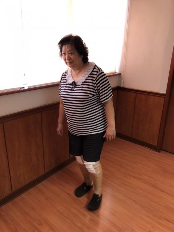 林婦置換雙膝蓋人工關節,不需輔具即行走自如。(記者黃旭磊攝)