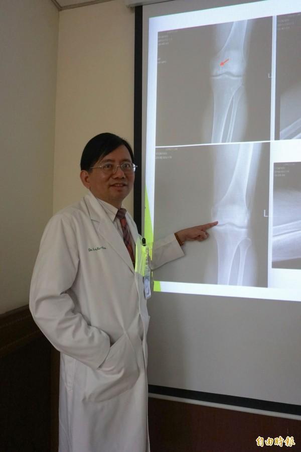 醫師呂克修指出老爺爺罹患膝關節骨壞死,膝關節內側被侵蝕出1個大洞(投影上圖)經微創關節鏡手術恢復(投影下圖)。(記者蔡淑媛攝)