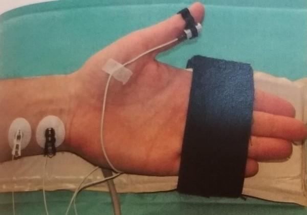 OTM處置利用微弱電流刺激手部神經,即時測試病人肌肉張力,以決定調整肌肉鬆弛劑量及時機。(醫院提供)