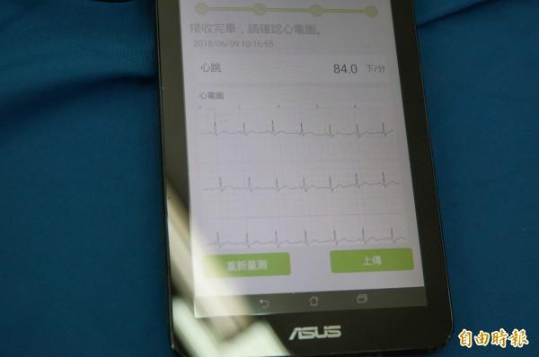 腕式心電圖,可在20秒測出心律是否有心房顫動的問題。(記者詹士弘攝)