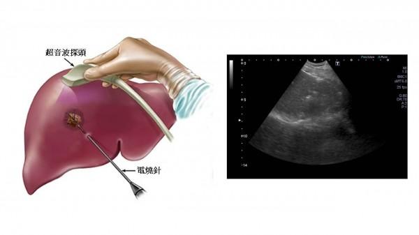 肝癌電燒會先用超音波定位,肝臟腫瘤的位置,把電燒針放至患部進行電燒。(記者王捷翻攝)