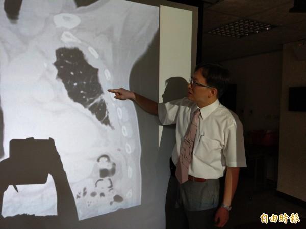 連偉立醫師指病患的腫瘤覆蓋在肋膜、心包膜及橫膈膜上。(記者方志賢攝)