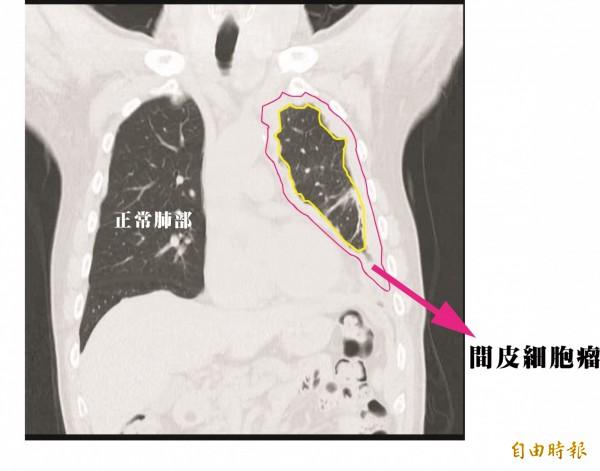 病患的惡性腫瘤覆蓋在肋膜、心包膜及橫膈膜上。(記者方志賢翻攝)
