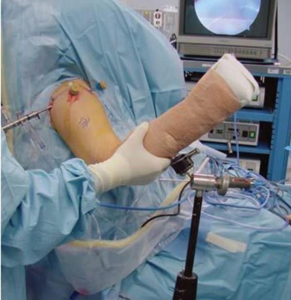 旋轉肌袖破裂的病患在手術前手無法舉高,必須開刀治療才能恢復正常。(記者詹士弘翻攝)