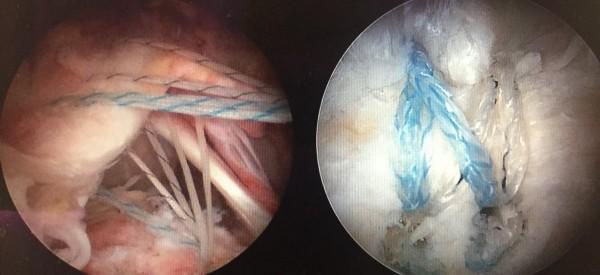 旋轉肌袖破裂開刀前肌肉分離(左),術後(右)肌肉已經縫合。(記者詹士弘翻攝)