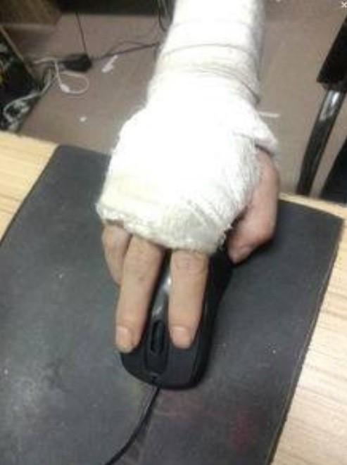 該名網友在臉書社團「新竹爆料公社」PO文,附上一張手打石膏的照片。(記者王駿杰翻攝自網路)